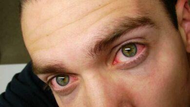 Photo of 5 Ways To Get Rid of Red Eye From Consuming Marijuana